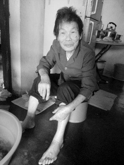 7旬阿婆全身疼痛无法直立行走 只能坐床上哭