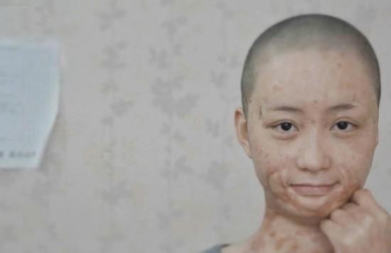 被官二代毁容少女索赔360余万元 在北京坐地铁