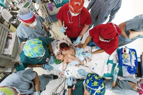 连体女婴共享多个器官手术26小时成功分离(图)
