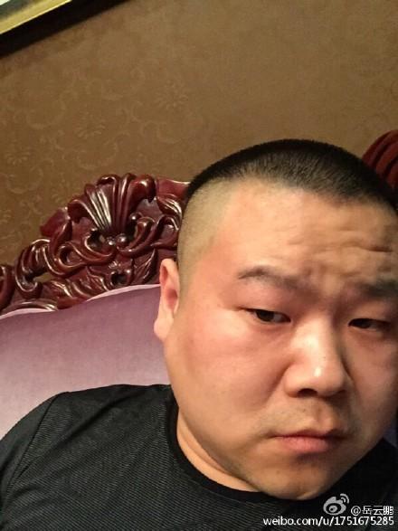 岳云鹏脸上长瘤欲手术 暂别舞台将有面瘫风险