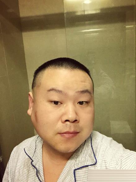 岳云鹏面部肿瘤切除手术成功 发微博报平安