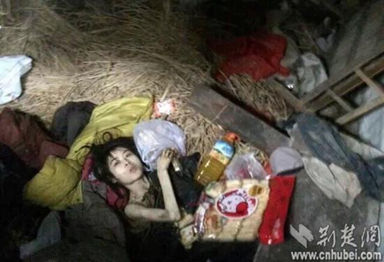 """湖北女孩被父母""""裸身囚禁""""5年 网友解救送医"""
