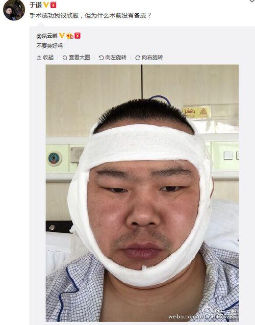 岳云鹏晒术后脸肿缠绷带照坦言:不要笑好吗(图)