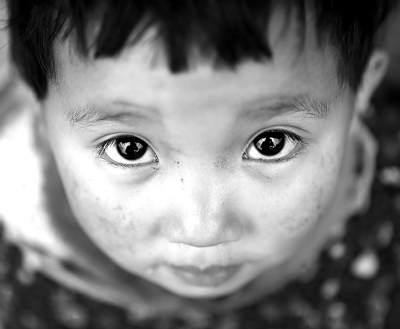 孩童也会患癌症——恶行性肿瘤已成为孩童第二死因