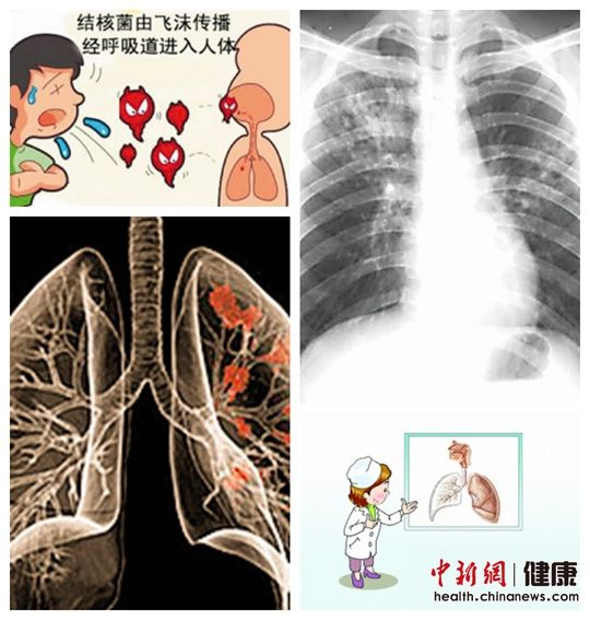 湖北频道           肺结核早期症状不典型,很多病人误以为是感冒
