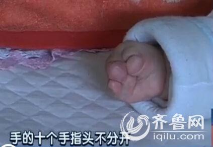 """的双手十个指头分不开,像是\""""猪蹄手\"""".-山东 女婴手脚似猪蹄需"""