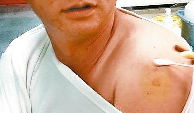 男子打针想自拍遭拒护理师:我的手是隐私(图)