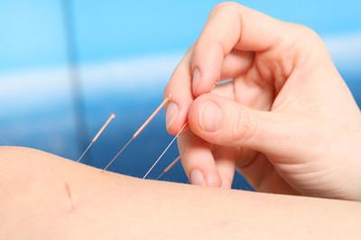 针灸减肥速度因人而异 针不是扎得越多越好