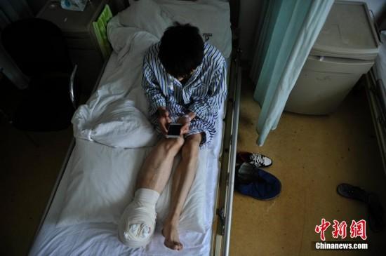 """四川小伙治疗罕见""""巨肢症"""" 右脚掌长近40厘米"""