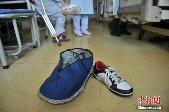"""四川小伙治疗罕见""""巨肢症"""" 右脚掌长近40厘米【2】"""