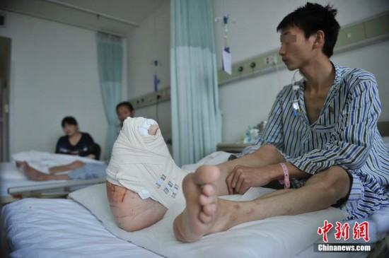 """四川小伙治疗罕见""""巨肢症"""" 右脚掌长近40厘米【3】"""
