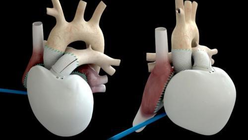"""法第三例人工心脏移植手术成功被赞""""医学壮举"""""""