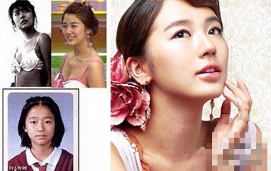 韩国女星整容对比照
