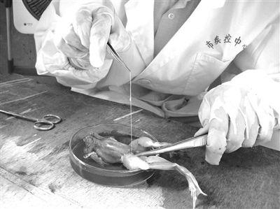 12岁女孩脑中取出20厘米长寄生虫 取出时仍蠕动