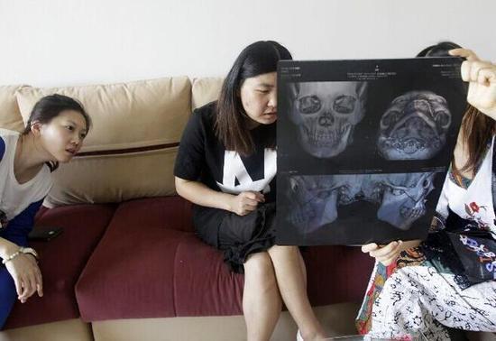 郑州大四女生颜值低被嘲讽 瞒家人整形怕死在手术台