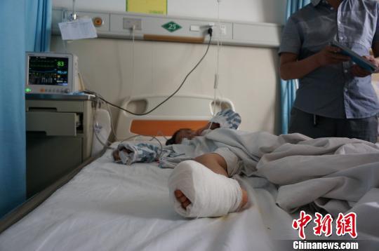 湖北一7岁女孩用橡皮筋紧勒脚指3天遭截肢