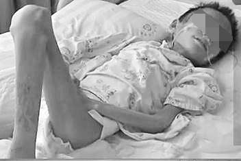 文昌一12岁患病男孩体重仅28斤 3年仍未确诊