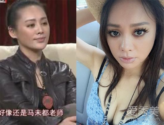 宁静拉皮+伊能静脸僵硬 40+女星真美or假美?