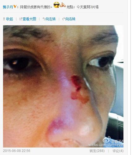 甄子丹拍戏鼻子受伤鼻梁掉肉一片血迹(图)