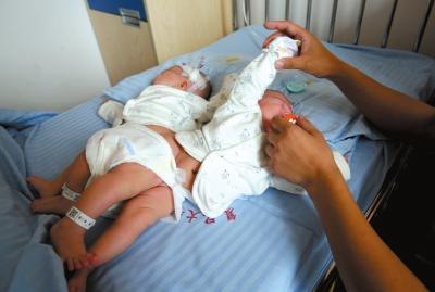 江西连体女婴被成功分离 采用3D打印技术(图)