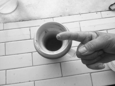 小区业主患肾结石 怀疑小区井水水质不达标