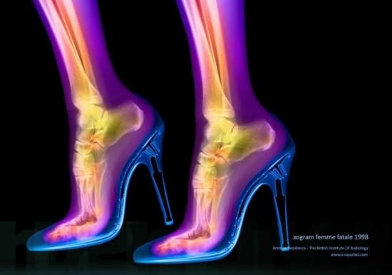 12张奇妙的人体X光片 颠覆你的审美