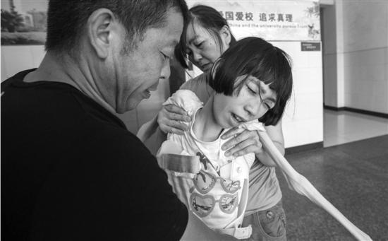温州女孩患怪病仅剩皮包骨 身绑固定器上课(图)