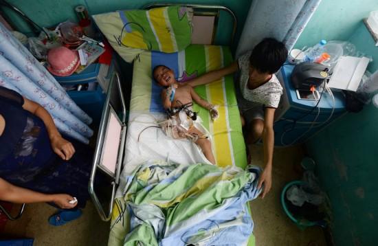 女孩 失去/2015年7月9日报道,重庆,2岁女孩在一场车祸中受重伤,失去了...
