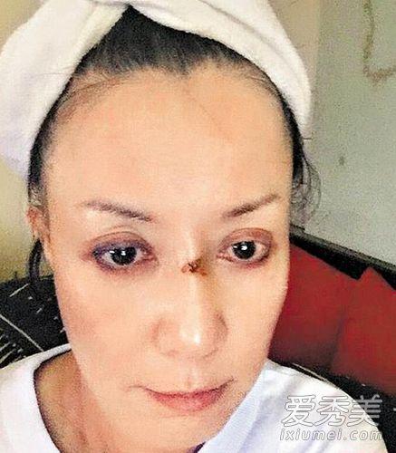 女星挤痘痘遭细菌感染 开刀拆除假鼻