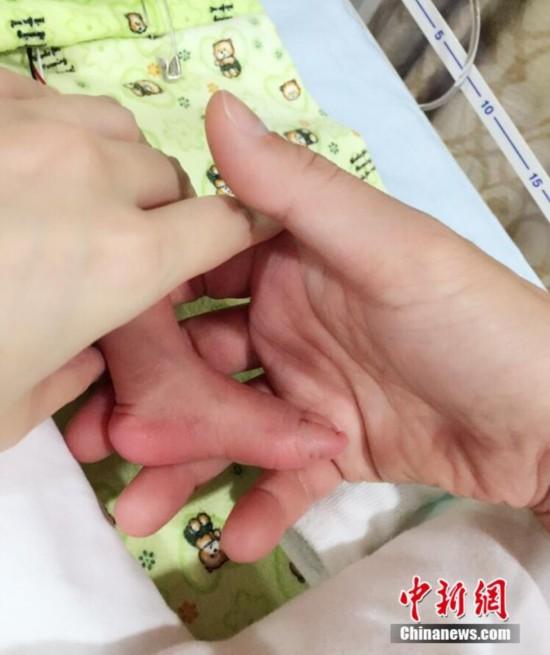徐若瑄新加坡剖腹产子 取名Dalton Lee