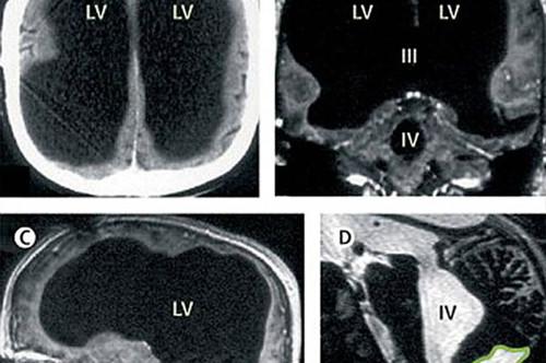 法国男子腿疼就医却被查出大脑已消失过半体积
