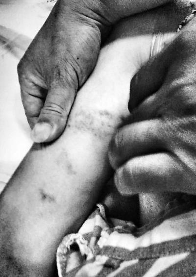 44岁女子羁押看守所月余后送医身亡 身上有瘀伤