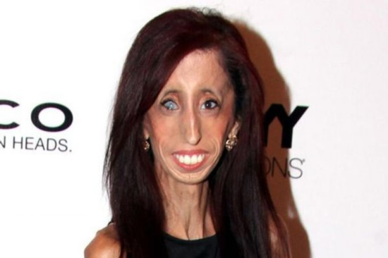 世界最丑女长啥样 世界最丑女人拍纪录片 以笑脸应对恶言