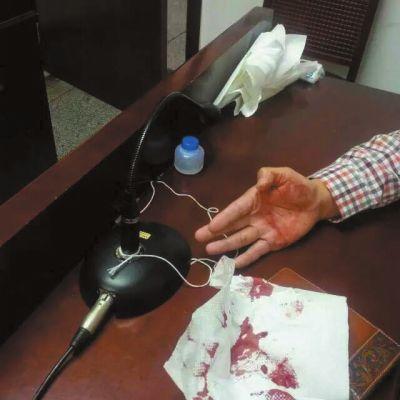 擦拭头部的纸巾上留有血迹。原告供图