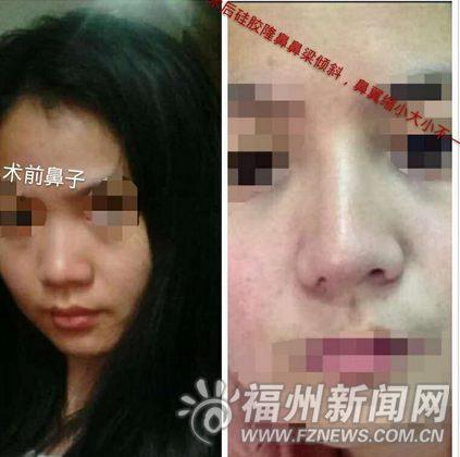 妙龄女整容后鼻孔一大一小 被医院告知无法修复