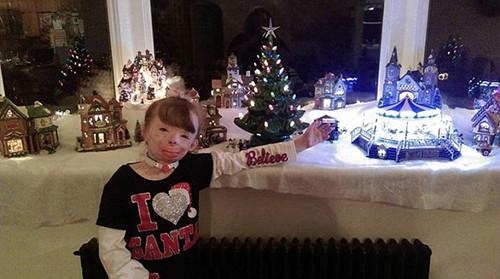 美国女童火灾中毁容姑姑征圣诞贺卡为其鼓励(图)