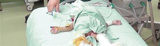 江西连体男婴成功分离 手术中曾用3D打印(图)