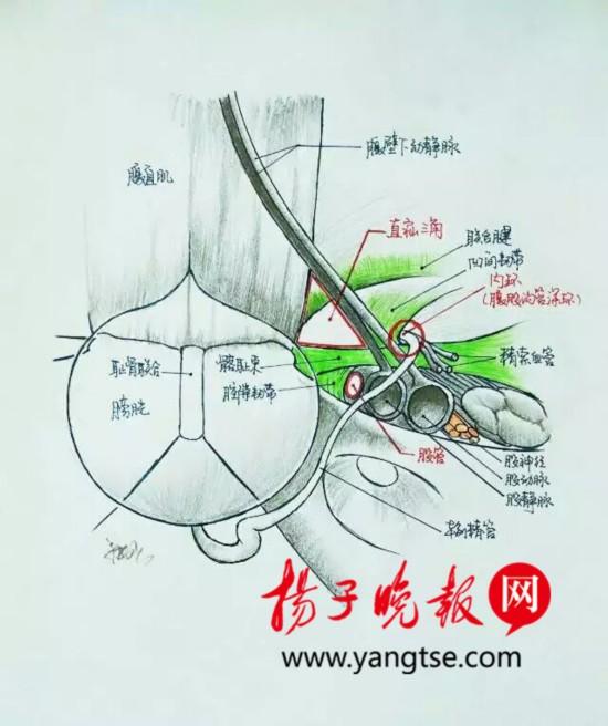 """医生手绘手术解剖图 患者""""秒懂""""手术过程"""