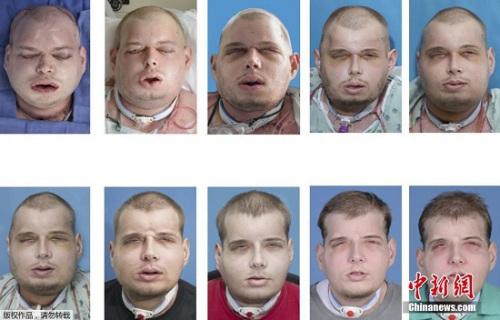 """美国一名男子在""""换脸手术""""期间面部的变化情况。"""