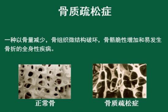 蘑菇结构解剖图