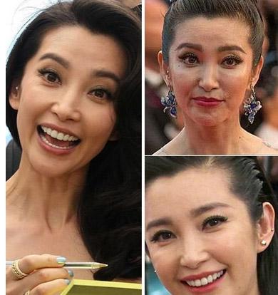 陈乔恩双下巴林心如显老 女明星素颜太吓人图片