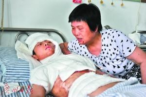 男孩跌入豆浆锅全身八成烫伤 每年需10万手术费