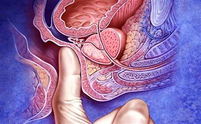 尖锐湿疣传染给宝宝症状