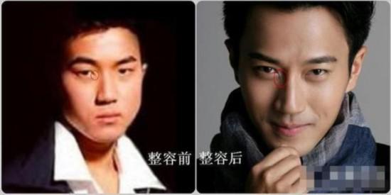 刘恺威整容前照片曝光 变化巨大获称假面小生