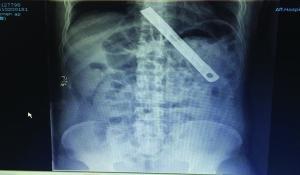 镇江一男子吞18厘米长刀片 医生胃镜下取出