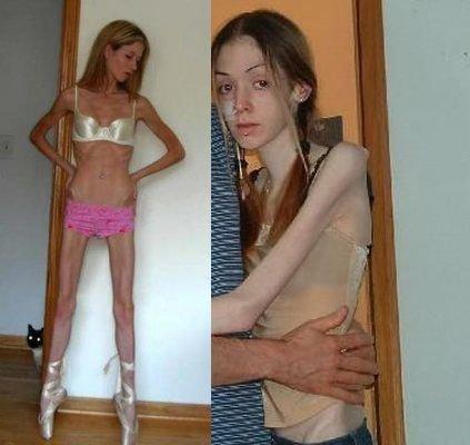 女孩1个月瘦18斤离世 不吃饭吃减肥胶囊终食恶果(图)