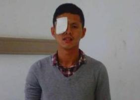 28岁小伙连吃多天烧烤吃瞎 两只眼睛患上白内障