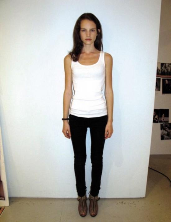 法国顶级模特被迫节食身体消瘦如老妪