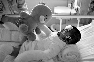 五龄童掉进饺子锅烫伤50% 12小时抢救保住生命
