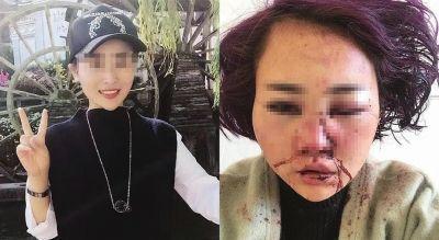 丽江被打毁容女子。